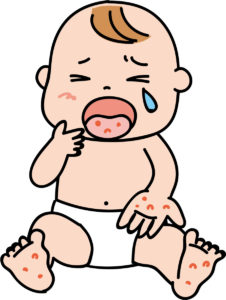 863243 226x300 - 1歳児の突発性発疹の恐怖!それは眠気との戦い!